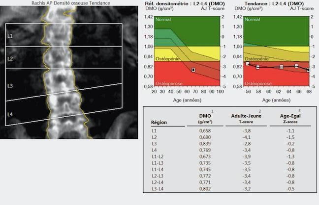 osteodensitometrie 2